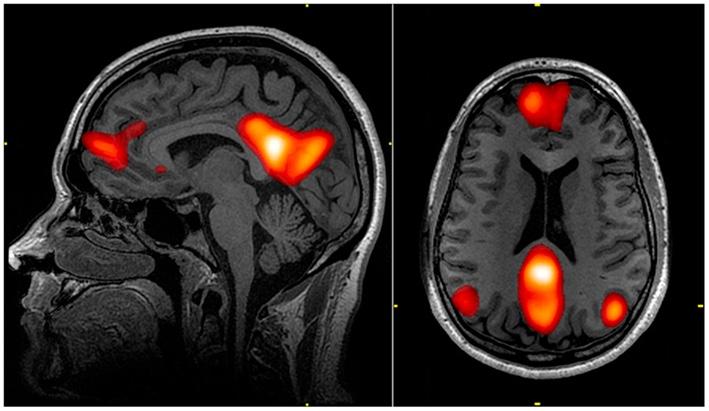 la marche améliore la perfusion cérébrale
